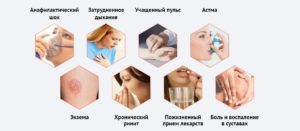 Симптом аллергии